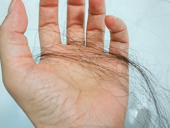 フィンペシアが薄毛を改善