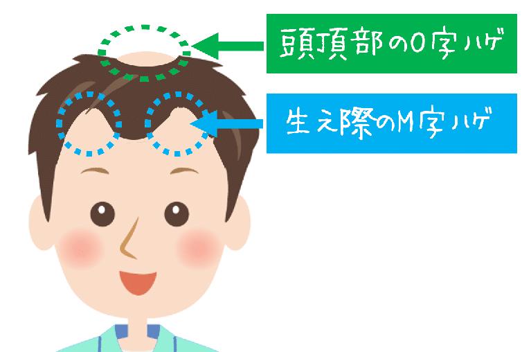 頭頂部、生え際の禿げ